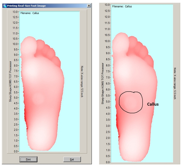 Sharp Shape AOMS TOT Processor Printing Foot-Image in Real-Size 2