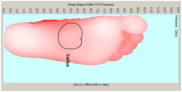 Sharp Shape AOMS TOT Processor Printing Foot-Image in Real-Size